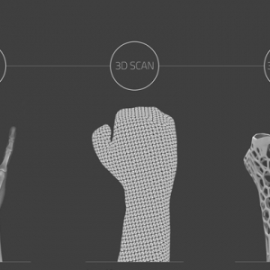 Heal bones faster with the 3D printed 'Osteoid' cast